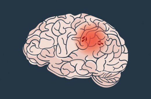 The risk of brain stroke increases in winter, know its symptoms - The Wall Post